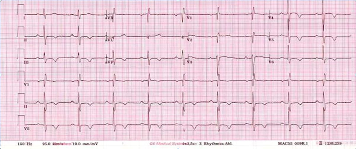 ecg-cpx-may-2018-case4.JPG