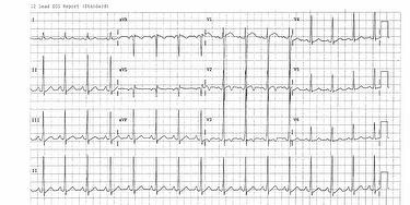 ecg-quiz-dec-2014-case-image.jpg