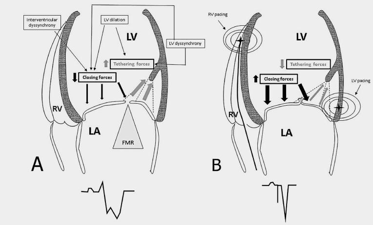 the use of cardiac resynchronisation to manage mitral