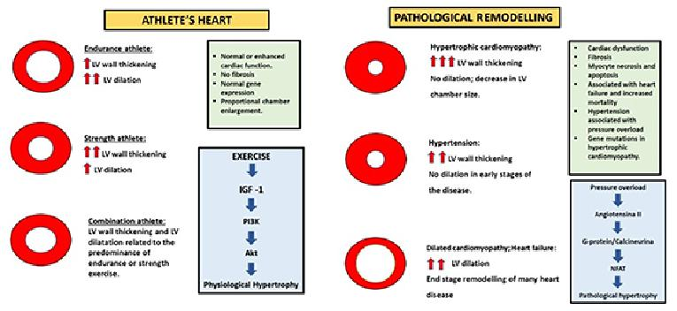 Cardiac Dysfunction And Athlete S Heart New Insights Into