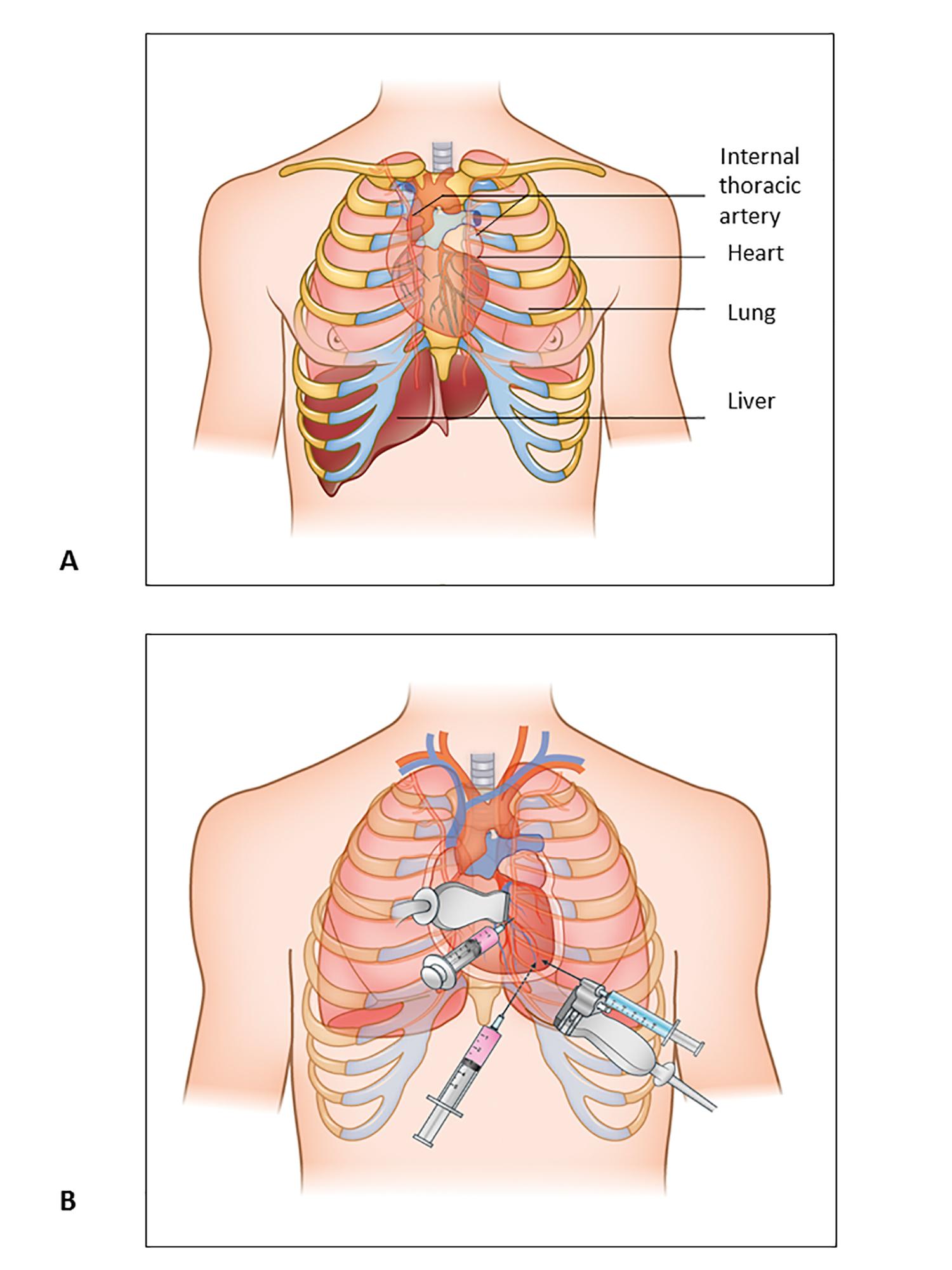 Pericardiocentesis in cardiac tamponade: indications and practical ...