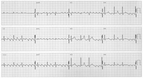 Atrial flutter: common and main atypical forms