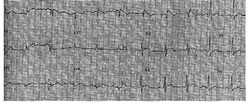 34 years old male, asymptomatic, no family history, routine ECG. Echocardio normal, Holter normal, stress test normal. EPS advised, refused by the patient. Eight months later: sudden arrhythmic death at 1 a.m., VF when EMS arrives. Necropsy: normal heart, normal coronary arteries. No other cause for sudden death: probably arrhythmic