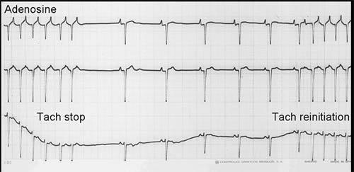 Ventricular Ectopic Beats Ventricular Ectopic Beats
