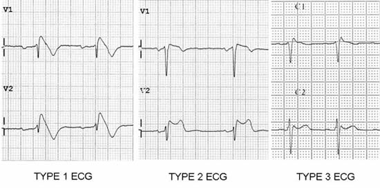 Management of patients with a Brugada ECG pattern