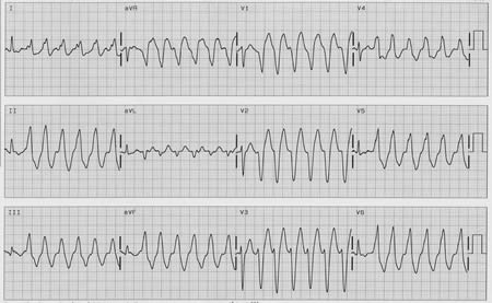 Ventricular tachycardia in patients without apparent