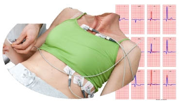 Figure 1 Practical example of misplacements of ECG electrodes with females. In the right panel an example of the ECGs at standard 12 lead ECG positions in blue and at the shown ECG positions in red as simulated by free educational package ECGsim [2] (www.ecgsim.org).
