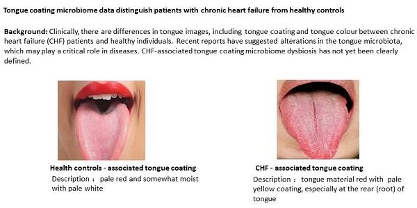 dysbiosis white tongue