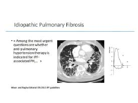 PH due to Lung Disease - comments and proposals - M. Humbert