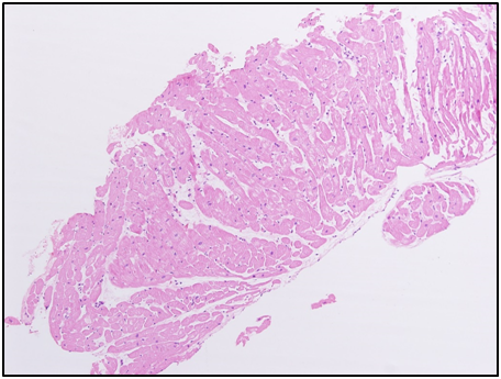 Figure 5: Right ventricular endomyocardial biopsy from KK showing no evidence of inflammation or eosinophil infiltration (H&E x100).