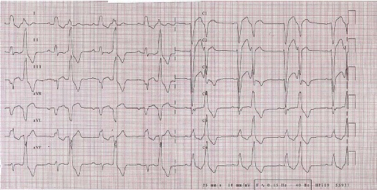 An electrocardiography (ECG) demonstrated sinus rhythm