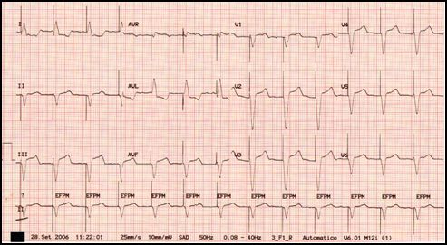 Regular pacemaker rhythm is present