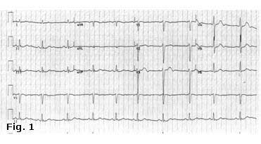 Figure 1: The ECG showed sinus rhythm, HR 67 beats/min, and normal repolarisation pattern