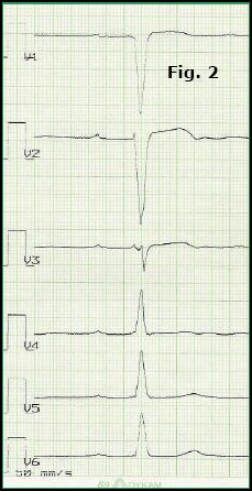 Fig. 2: The ECG showed sinusrhythm and first degree atrioventricular block