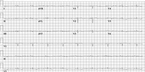 ECG of the patient