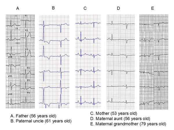 Maternal grandmother´s ECG