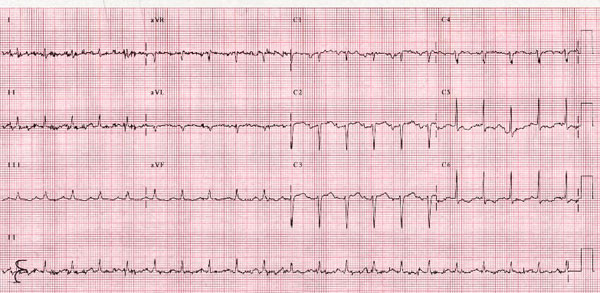 ECG showed sinus rhythm, 90 bpm, low voltage in limb leads