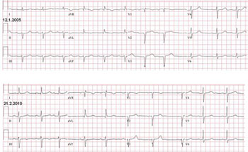 Two electrocardiograms recorded 5 years apart