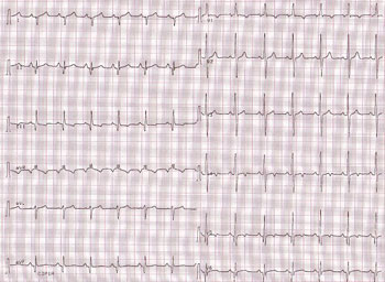 Electrocardiogram of proband's brother