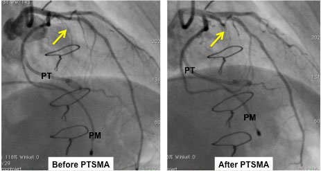 Angiographic sequence of PTSMA