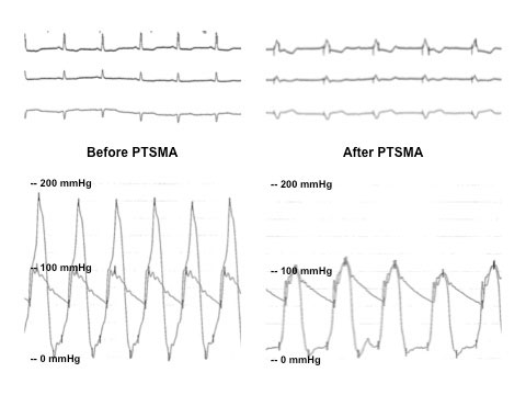 Hemodynamic result of PTSMA