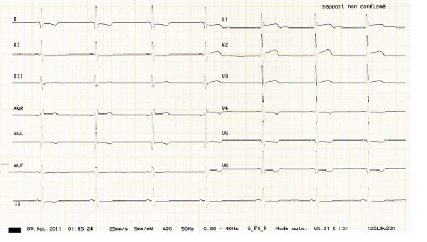 ECG of the youngest brother